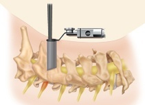 Cervical Foraminotomy